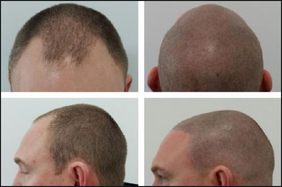 No More Hair Loss with SMP