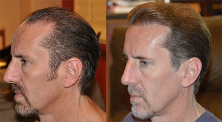 The procedure of hair restoration is very simple